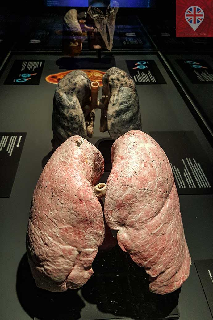 Body Worlds lung